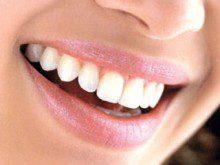 Os seus dentes estão todos na boca?