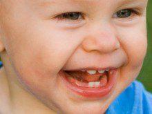Teve os seus dentes cedo?